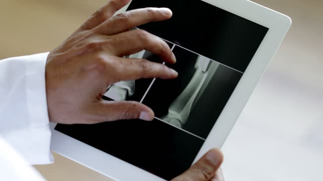 doctor using digital tablet with broken bone x-ray results - broken stock videos & royalty-free footage