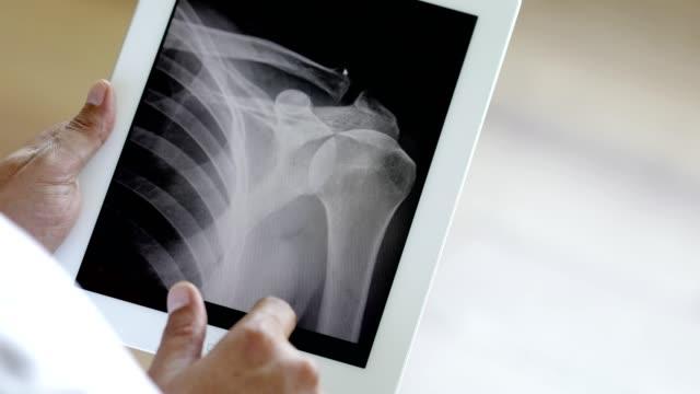 x線結果を伴うデジタルタブレットを使用した医師 - 骨折点の映像素材/bロール