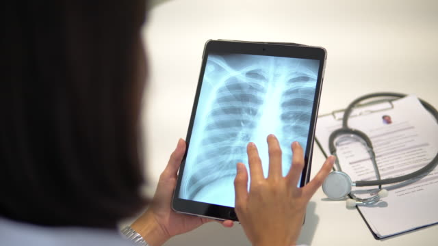 doctor using tablet for looking x ray film - lung stock videos & royalty-free footage