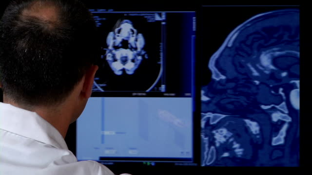 doctor with brain scans - konzentration stock-videos und b-roll-filmmaterial