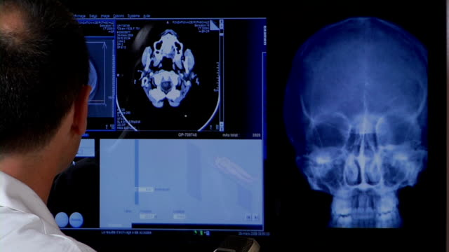 vídeos y material grabado en eventos de stock de doctor with medical scans - imagen de rayos x