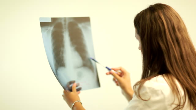 Doctors consults over an X-ray Images