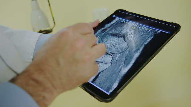 doctors discussing x-ray scans on digital tablet - diagnostic medical tool stock videos & royalty-free footage