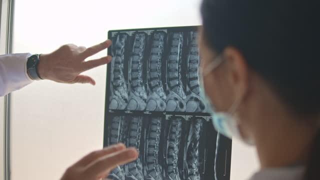 患者のレントゲン写真を調べ、議論する医師 - レントゲン点の映像素材/bロール