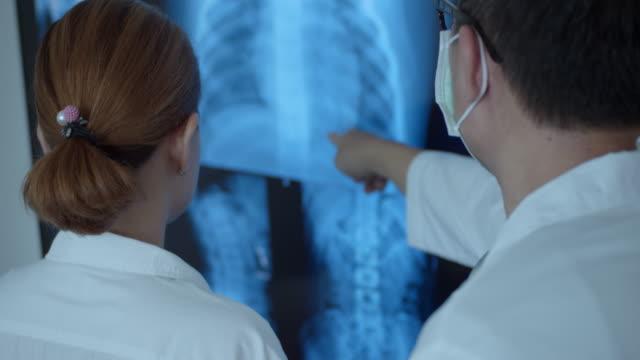 医師は患者のx線を調べ、議論し、スローモーション - レントゲン点の映像素材/bロール