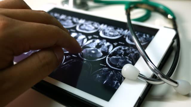 vídeos de stock, filmes e b-roll de médicos examinando a imagem de raio-x do cérebro computado tomografia em um tablet, o conceito de médico - tomografia
