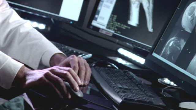 vídeos de stock, filmes e b-roll de cu, doctor's hand showing shoulder 3d scan on computer monitor, swedish american heart hospital, rockford, illinois, usa - ombro