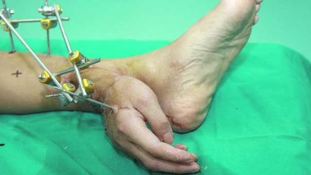 stockvideo's en b-roll-footage met doctors in china keep a man's severed hand alive for a month by attaching it to his leg before restoring it to its usual position clean chinese man's... - aan elkaar bevestigd
