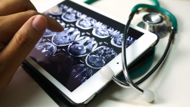 vídeos de stock, filmes e b-roll de médicos que usam tablet digital - tomografia computadorizada