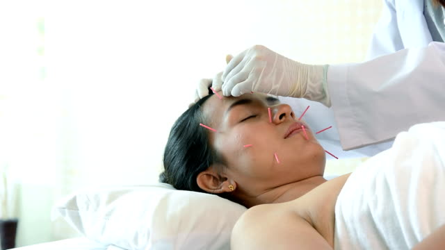 dolly shot of young beautiful woman getting acupuncture treatment from acupuncturists, therapist giving acupuncture treatment to customer's head on bed - chinese herbal medicine stock videos and b-roll footage