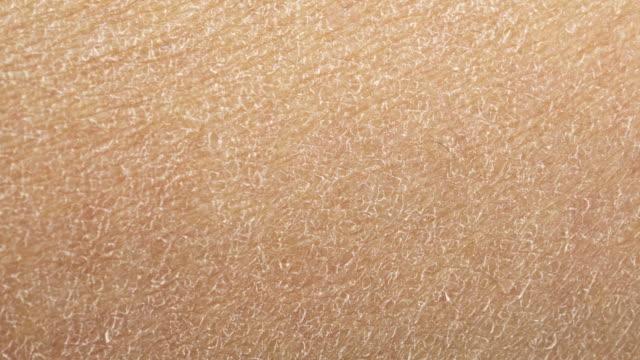 vidéos et rushes de peau humaine sèche - sec