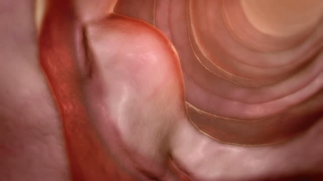 duodenal tumor - human intestine stock videos & royalty-free footage