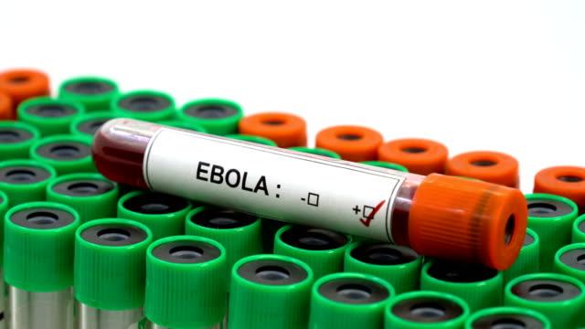 ebola virus positive - democratic republic of the congo stock videos & royalty-free footage