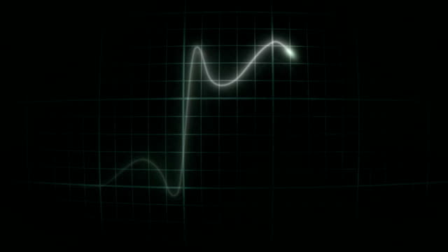 vídeos de stock, filmes e b-roll de ecg_heartattackintimeconvexscreen - heart attack