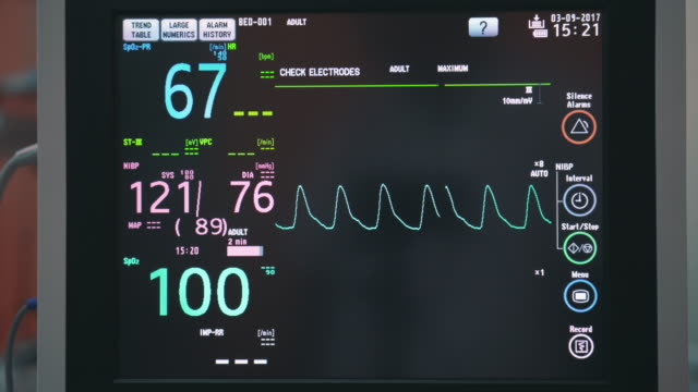 ecg,vital signs monitor - liquid crystal display stock videos and b-roll footage