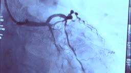 Echocardiography | Coronary Angiography