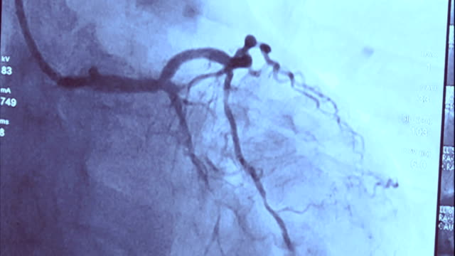 echocardiography | coronary angiography - black and white stock videos & royalty-free footage