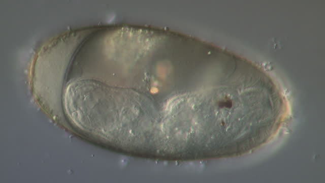 vídeos y material grabado en eventos de stock de egg of the liver fluke fasciola hepatica showing ciliated miracidium, recorded using differential interference contrast. egg length is 140 microns. - platelminto