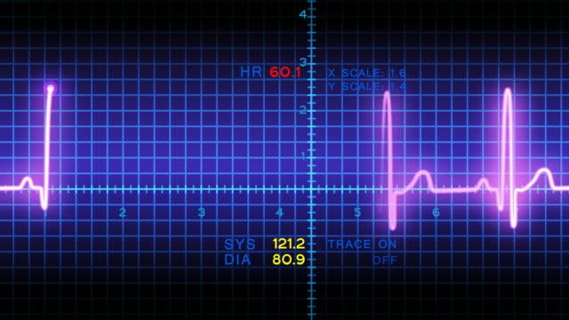 vídeos de stock, filmes e b-roll de animação de ecg - heart attack