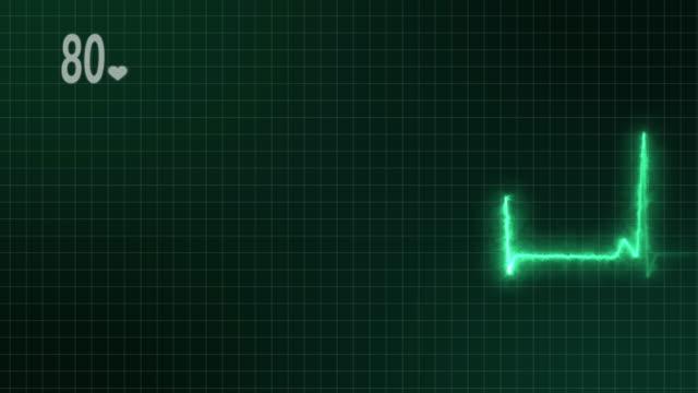 vídeos de stock, filmes e b-roll de monitor de coração ekg 4k - sistema de condução cardíaco