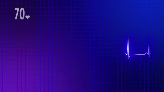 vídeos de stock, filmes e b-roll de monitor cardíaco de ecg - sistema de condução cardíaco