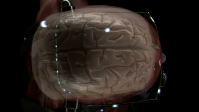 electrical signals travel along wires hooked up to a human brain. - cerebrum stock videos & royalty-free footage