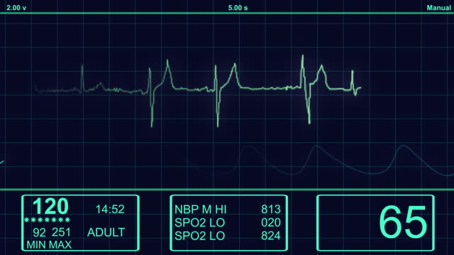 ecg - electrocardiogram heart monitor  -hd - graph stock videos & royalty-free footage