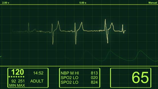 心臓 ecg モニター-hd 心電図(electrocardiogram ) - 心電図点の映像素材/bロール