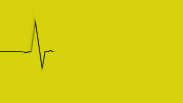 electrocardiogram on yellow background loop - microscopio elettronico a scansione video stock e b–roll