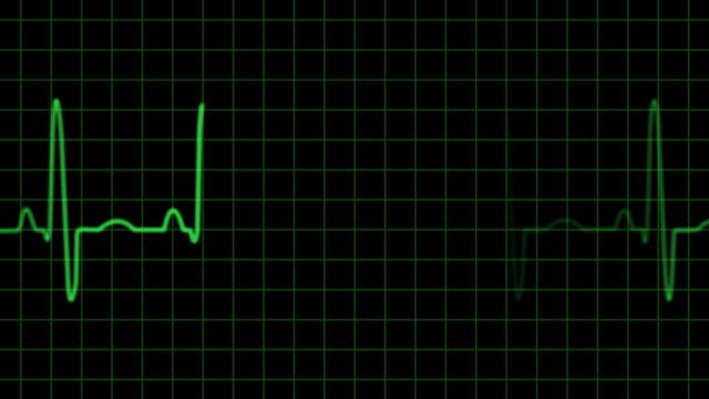 EKG electrocardiogram pulse trace heart monitor