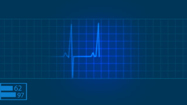 ekg electrocardiogram pulse trace heart monitor - pulsating stock videos and b-roll footage
