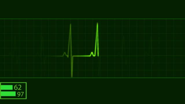 ECG elettrocardiogramma elettrocardiogramma per il monitoraggio del cuore