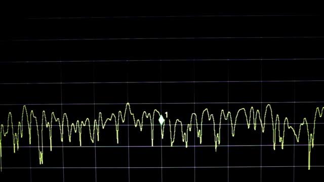 electronic wave signal