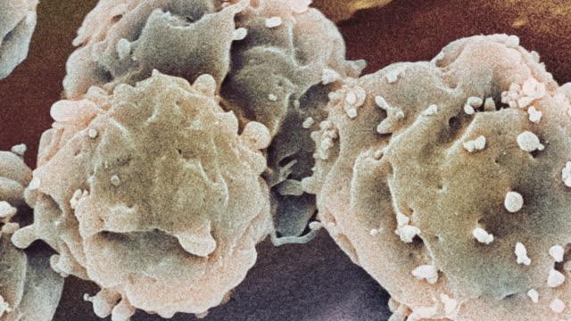 """vídeos de stock, filmes e b-roll de """"embryonic stem cells, sem"""" - micrografia científica"""