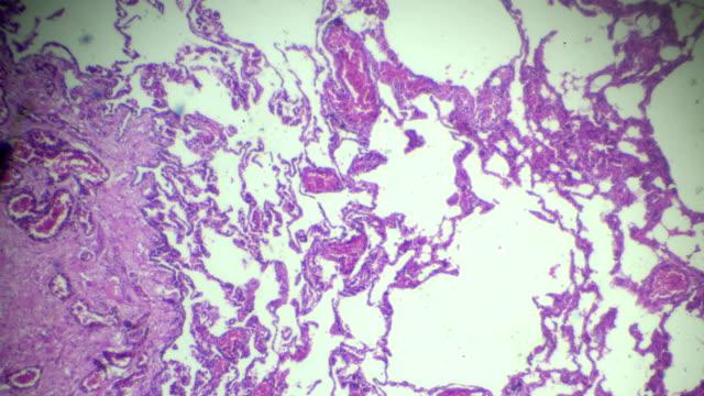 emfysem mänskliga patologiska prov under mikroskop - lunga bildbanksvideor och videomaterial från bakom kulisserna