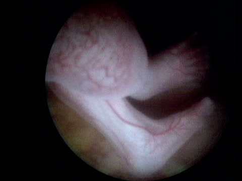 endoscopic shot of fetus in womb - fetus stock videos and b-roll footage