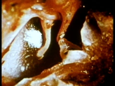 1969 endoscopic view of the auditory ossicles inside the human ear transmitting 'sound energy'/ audio/ usa - human ear stock videos & royalty-free footage