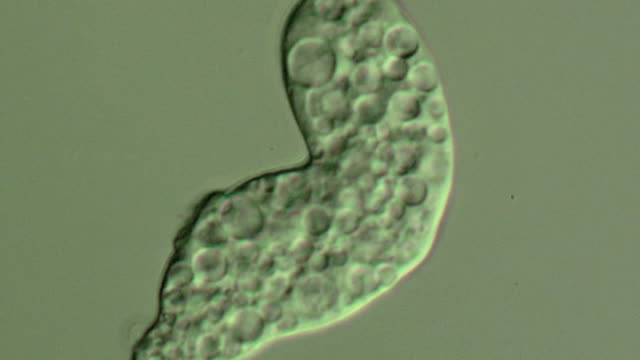 entamoeba histolytica parasite - human liver stock videos & royalty-free footage