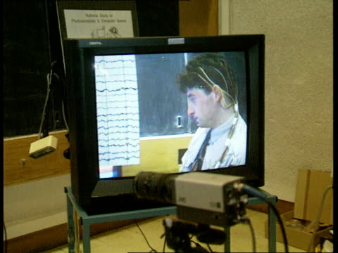 London Institute of Neurology TGV National Society for Epilepsy pkf with demonstration in progress CMS Man with wires attached to scalp watching...