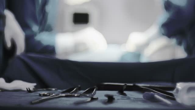 優秀な外科チーム、外科装置 - 直腸点の映像素材/bロール