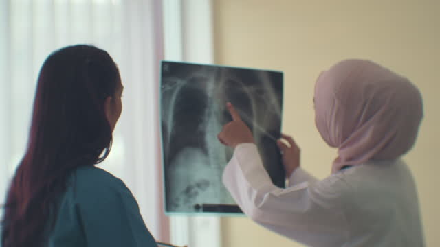 explaining the lung x-ray - human lung stock videos & royalty-free footage