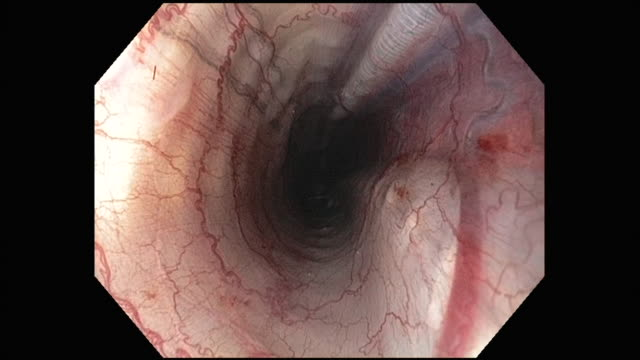 exteme close up - endoscope view of snake digestive track as scope is drawn back out of snake / california usa - endoscope stock videos & royalty-free footage