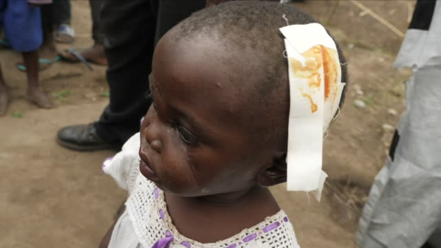 exterior shots of terribly injured child victims of machete attacks after a dramatic increase in ethnic violence on 12 april 2018 in the democratic... - democratic republic of the congo stock videos & royalty-free footage