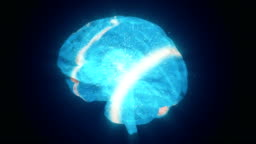 Extraordinary brain activity and the emerging headache from overexertion