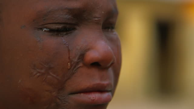 Extreme close up Angolan handicapped girl cries