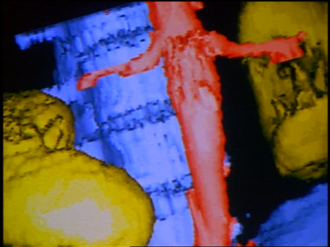 stockvideo's en b-roll-footage met extreme close up computer display of cgi model of spine, hip bones + kidneys - human kidney