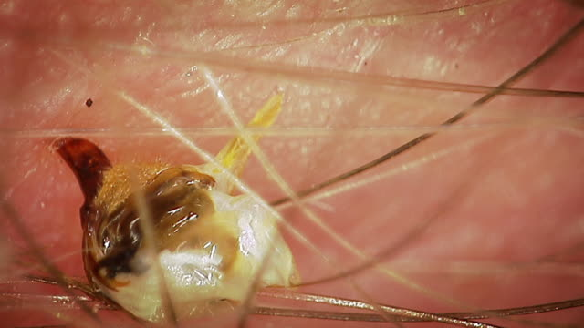 extreme close up of a bee stinger pulsing in a human arm - stechen stock-videos und b-roll-filmmaterial