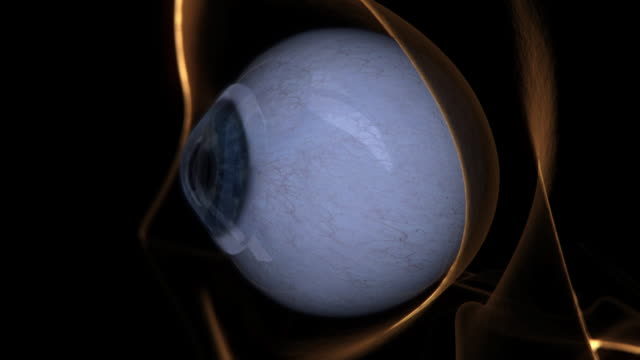 Extreme Close Up push-in - Eye drops reveal parasites on an eye with a contact lens in a computer-generated animation.