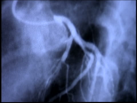 extreme close up ultrasound (heart?) of tissue moving / brazil - medical x ray stock videos & royalty-free footage