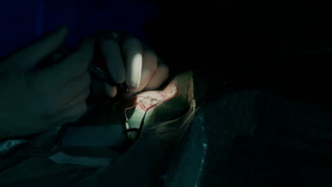 eye microsurgery. medical operation - lens optical instrument stock videos & royalty-free footage